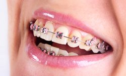 Affordable Metal Braces Services in Greater Boston Orthodontics