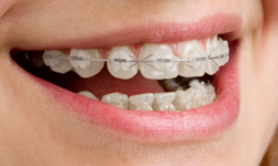 Get the Best Ceramic Braces Services in Greater Boston